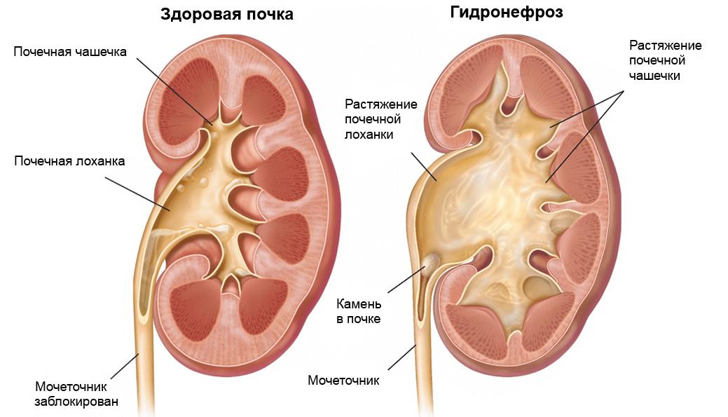 Симптомы гидронефроза почек у новорожденных и детей старше года, методы лечения и исход заболевания