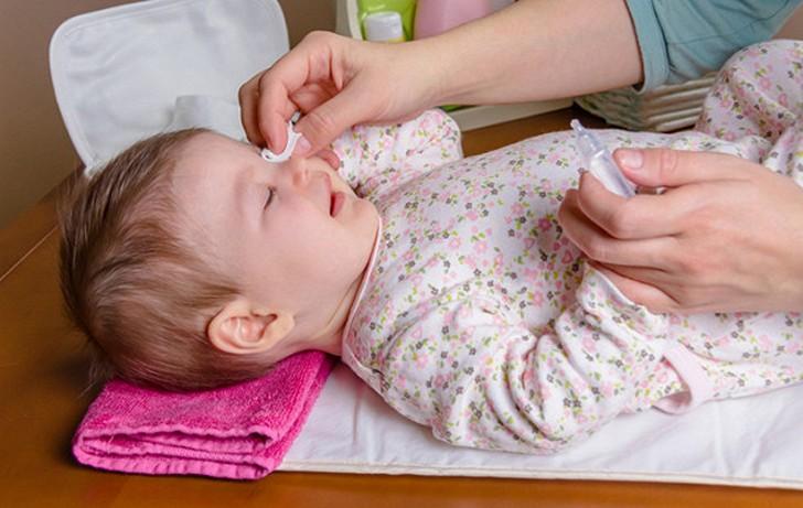 Аллергический конъюнктивит может развиться вследствие аллергической реакции на офтальмологические капли