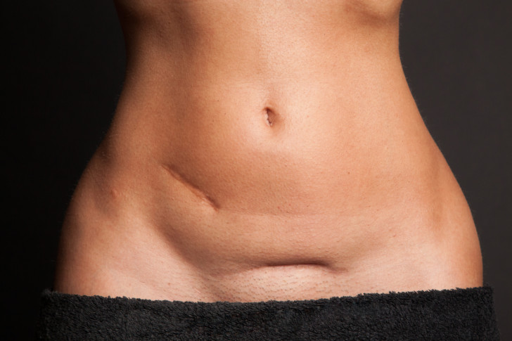 Когда у женщины начинаются первые месячные после проведения кесарева сечения и сколько дней идут?