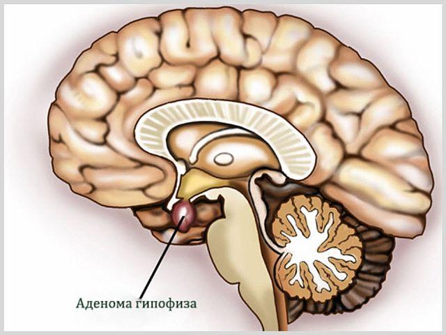 Аденома гипофиза головного мозга - что это такое