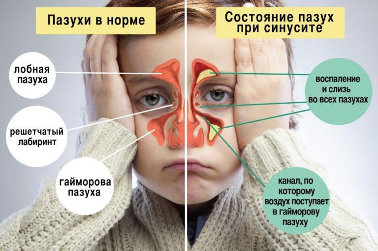 Главной причиной неприятного запаха из носа являются заболевания ЛОР-органов