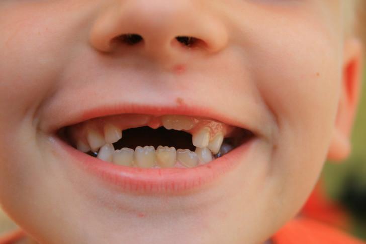 Сроки и схема замены молочных зубов на постоянные у детей: какие выпадают первыми, сколько длится прорезывание?