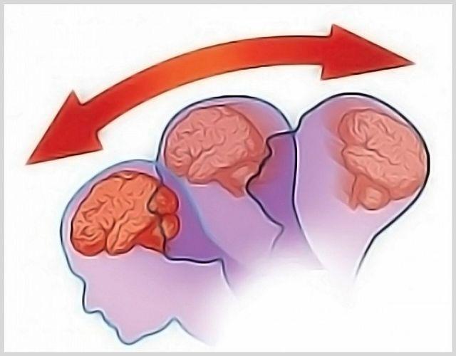 Как понять что у тебя сотрясение головного мозга