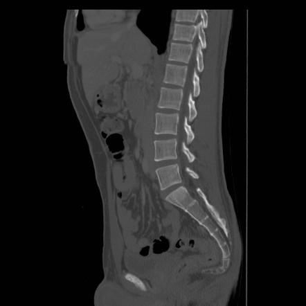 рентген копчика