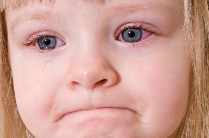 Симптомы вирусного конъюнктивита у детей, причины и лечение заболевания глаз