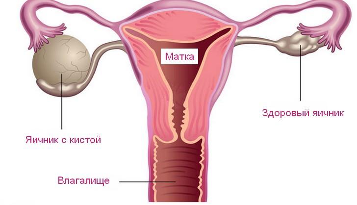 Чем грозит киста на левом или правом яичнике на ранних и поздних сроках беременности и как ее лечат?