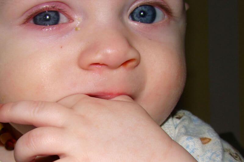 Золотистый стафилококк у ребенка в носу и горле: симптомы и лечение инфекции