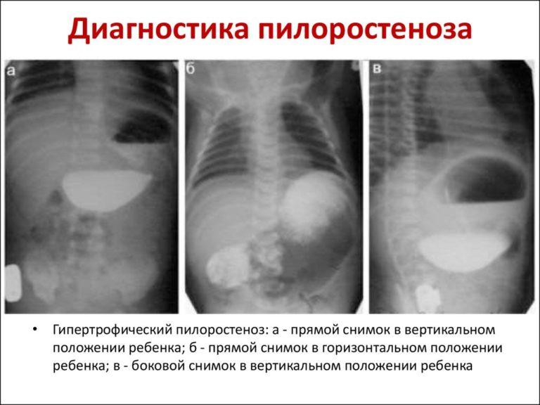 Симптоматика пилороспазма и пилоростеноза у новорожденных и грудных детей, диагностика и лечение