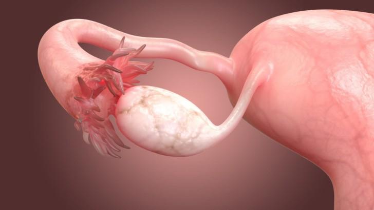 Симптомы и лечение кисты желтого тела правого или левого яичника с кровотечением и без: что это такое, насколько опасно?