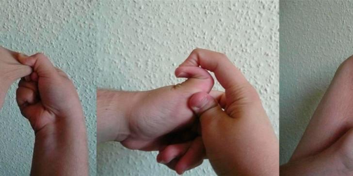 Симптомы синдрома дисплазии соединительной ткани у детей и лечение патологии