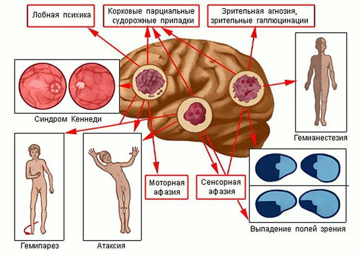 Первые признаки и симптомы опухоли мозга