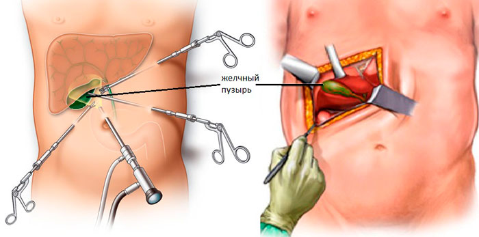 лапаротомия и лапароскопия