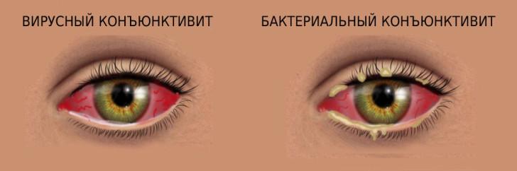 Симптомы и лечение бактериального конъюнктивита у детей, отличие от вирусного заболевания глаз