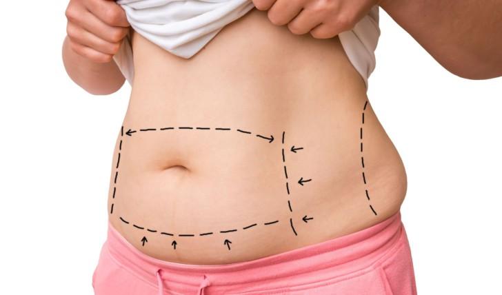 Как в домашних условиях убрать живот, появившийся после кесарева сечения: эффективные средства и упражнения