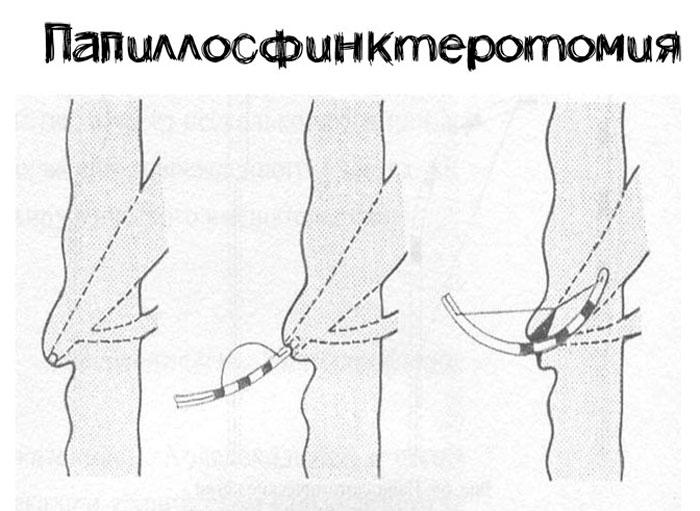 Папиллосфинктеротомия