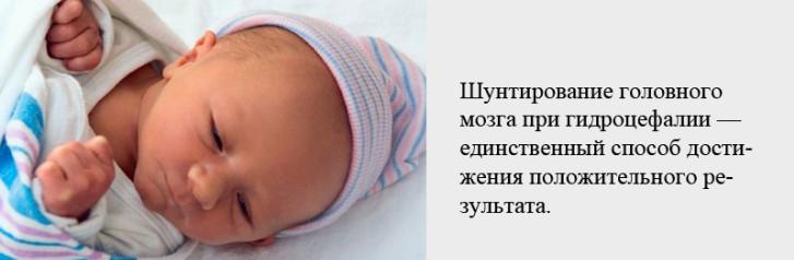 Лечение ишемии головного мозга у новорожденных, последствия аноксического поражения