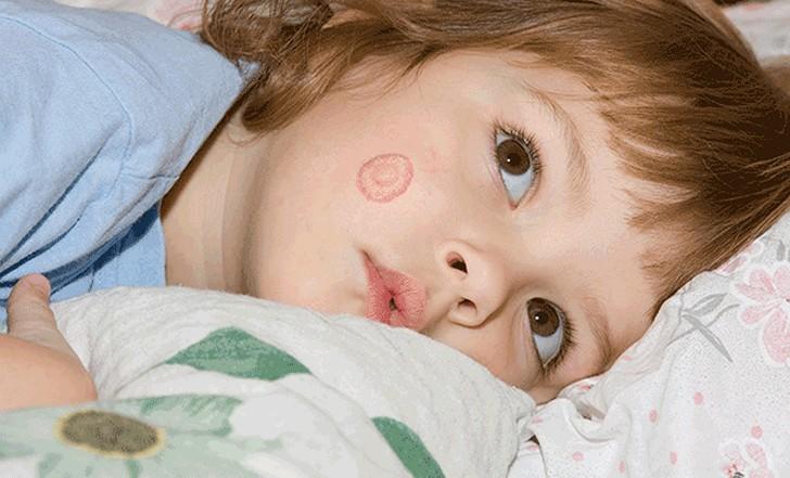 Разноцветный лишай на лице у детей