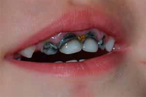 lechenie-kariesa-molochnyx-zubov-14
