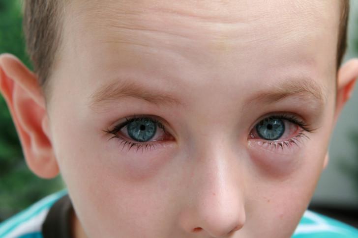 Как узнать, есть ли аллергия у ребенка и какими способами можно выявить потенциальный аллерген?