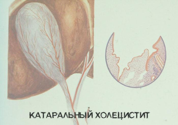 катаральный
