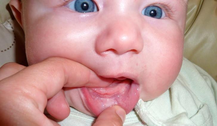 Калгель: инструкция по применению при прорезывании зубов у детей разного возраста