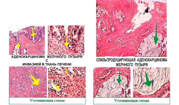 аденокарцинома