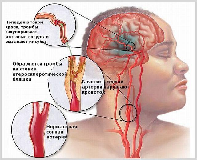 Парализация правой стороны тела при инсульте: лечение, прогноз