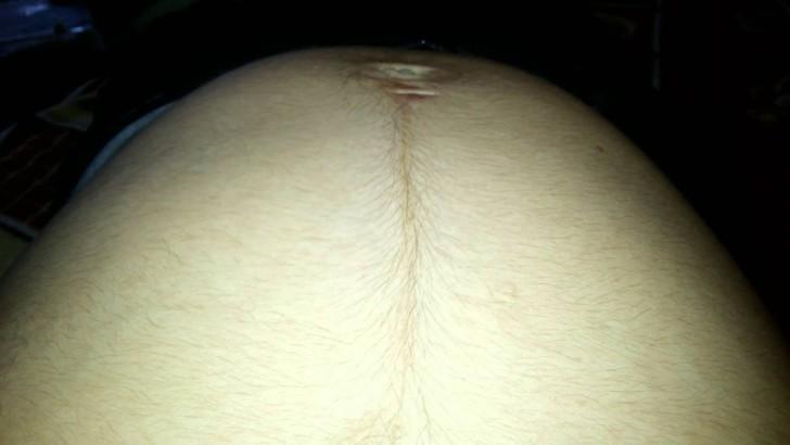 Во время беременности появились волосы на животе: почему это произошло?