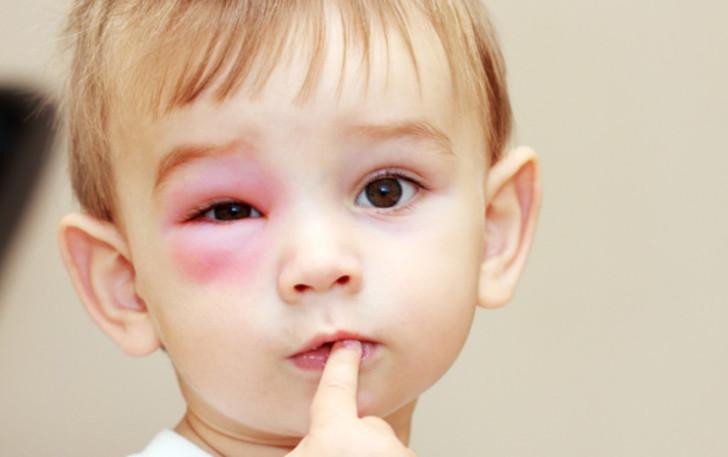 Почему у грудничка и ребенка постарше может опухнуть и покраснеть верхнее или нижнее веко, что делать?