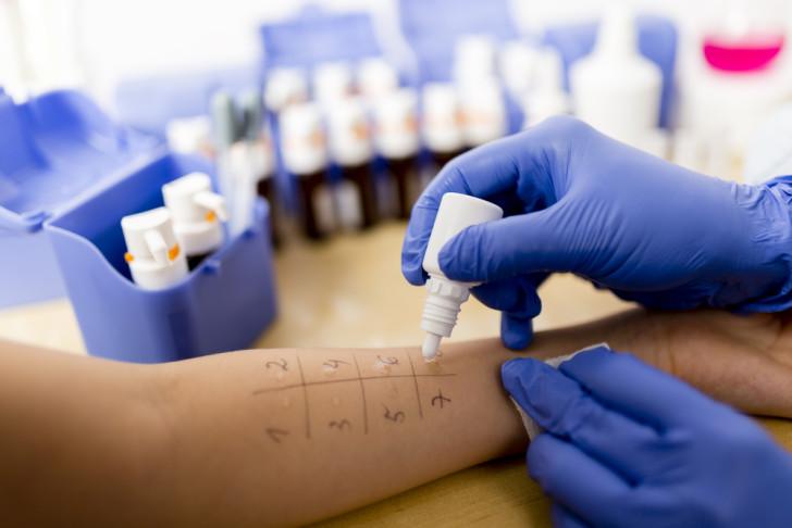 Как выглядит пищевая аллергия у грудничков: симптомы с фото и способы лечения