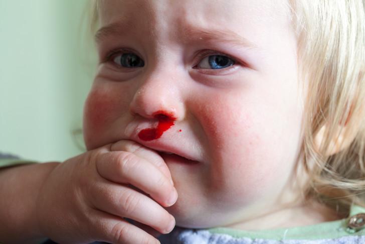 Особенности гемофилии у детей что это такое, как и почему проявляется, поддается ли лечению?
