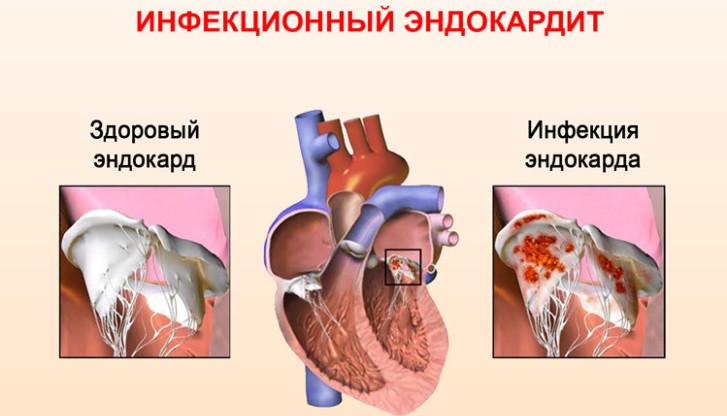Причины врожденных пороков сердца у детей, симптомы и лечение, последствия