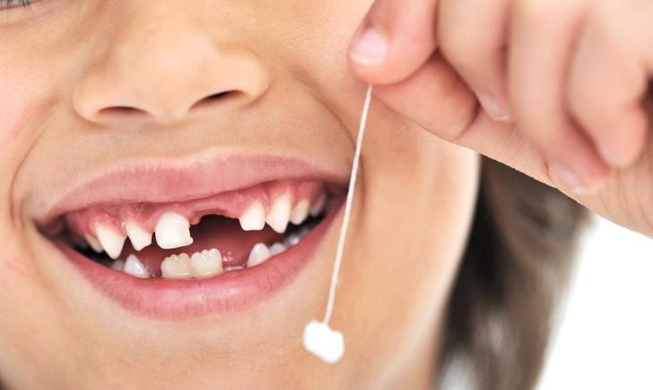 Сроки и порядок прорезывания молочных зубов у грудничков и детей до 3 лет: таблица и график роста