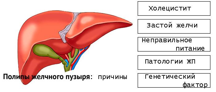 Холестериновый полип в желчном пузыре диета