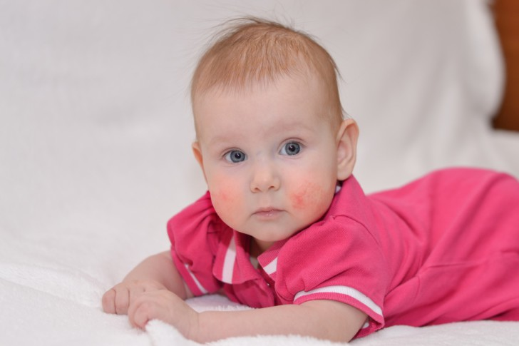 Симптомы и лечение экземы у детей: фото вирусной и других форм патологии на разных стадиях