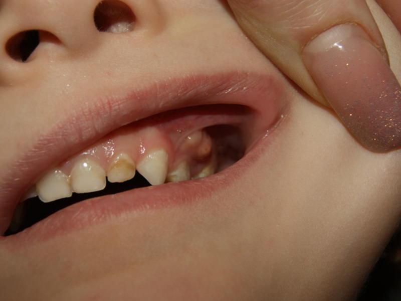 Что делать, если на десне у ребенка появилась шишка: как лечить гнойник над молочным зубом?