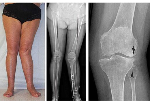 Рентген вальгусная деформация нижних конечностей