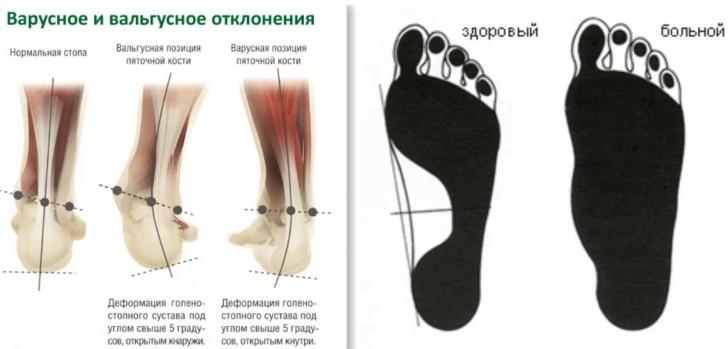Варусная деформация стопы у ребенка: симптомы, лечение с помощью массажа и ЛФК, подбор обуви