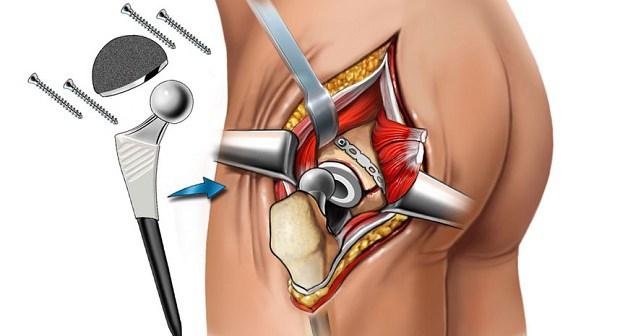 Принцип операции по эндопротезированию