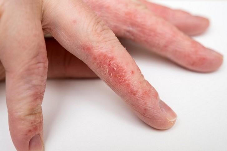 Начальная стадия псориаза на пальцах рук