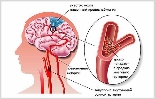 Что такое микроинсульт и каковы его последствия
