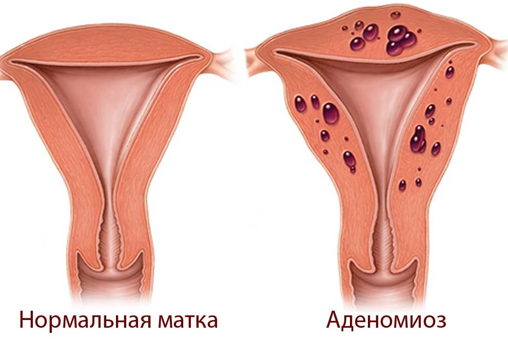 Беременность при аденомиозе матки: последствия, диагностика и методы лечения