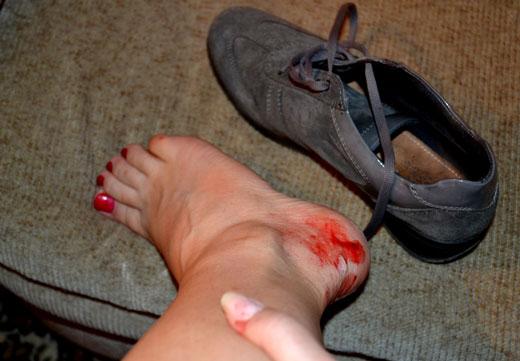 Кровь на ногах от обуви