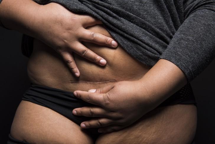 Как выглядит после кесарева сечения рубец на матке, какова его толщина в норме, какие проблемы могут возникнуть со швом?