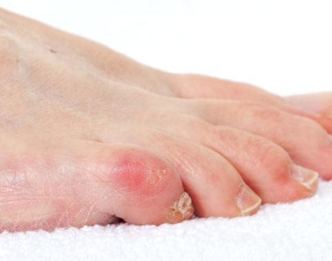 почему образуется мозоль на мизинце ноги