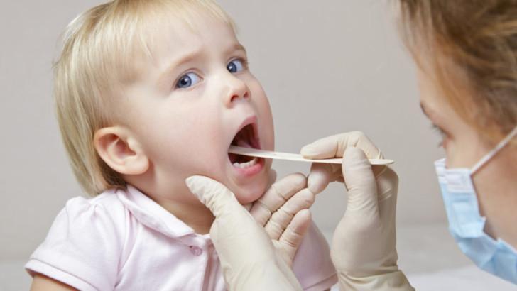 Симптомы гнойной ангины у детей с фото и способы лечения в домашних условиях