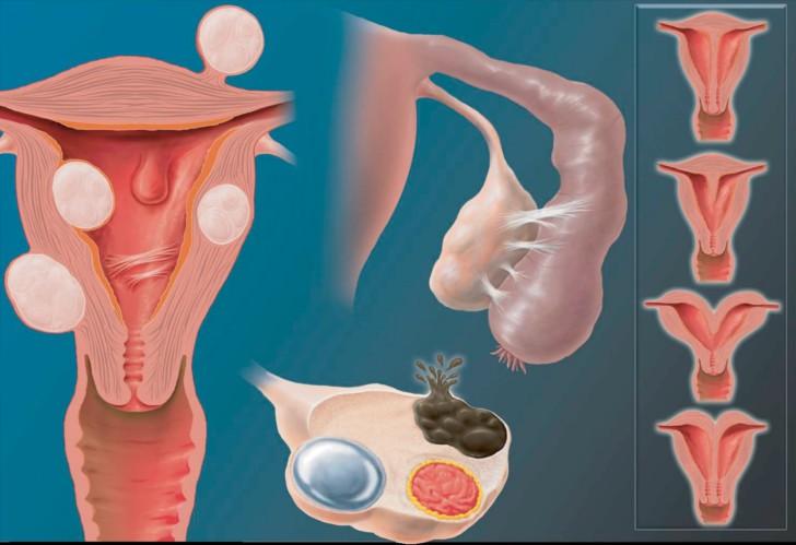 Понятие седловидной матки: что это значит и какие бывают формы, как выбрать позу для зачатия и можно ли забеременеть?