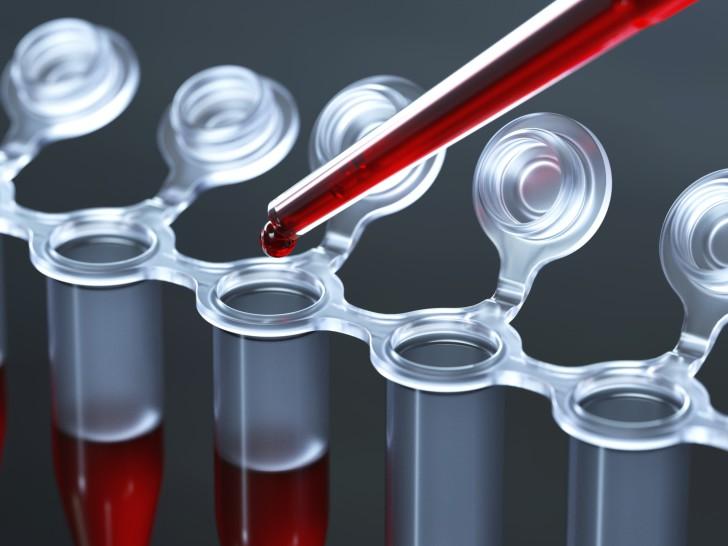 Норма уровня кальция в крови у детей до года и старше, анализ на выявление повышенных и пониженных показателей