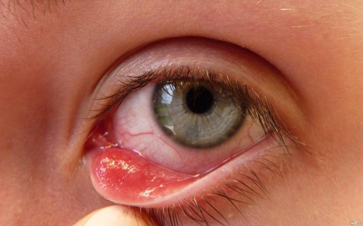 Как быстро вылечить ячмень верхнего или нижнего века на глазу у ребенка в домашних условиях?