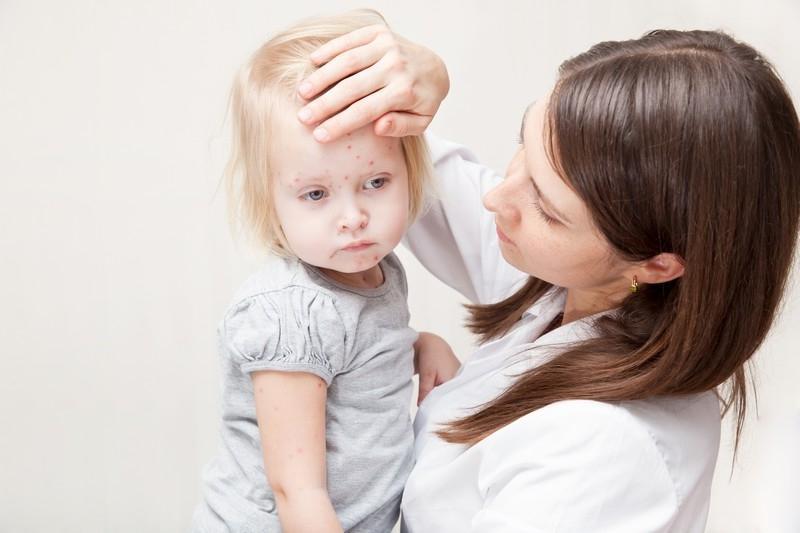 Как выглядят начальные признаки ветрянки у детей: симптомы с фото, лечение и профилактика оспы